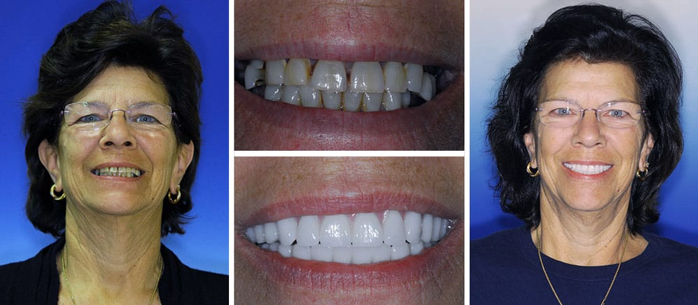 Doris - before and after smile - Beth Snyder, DMD