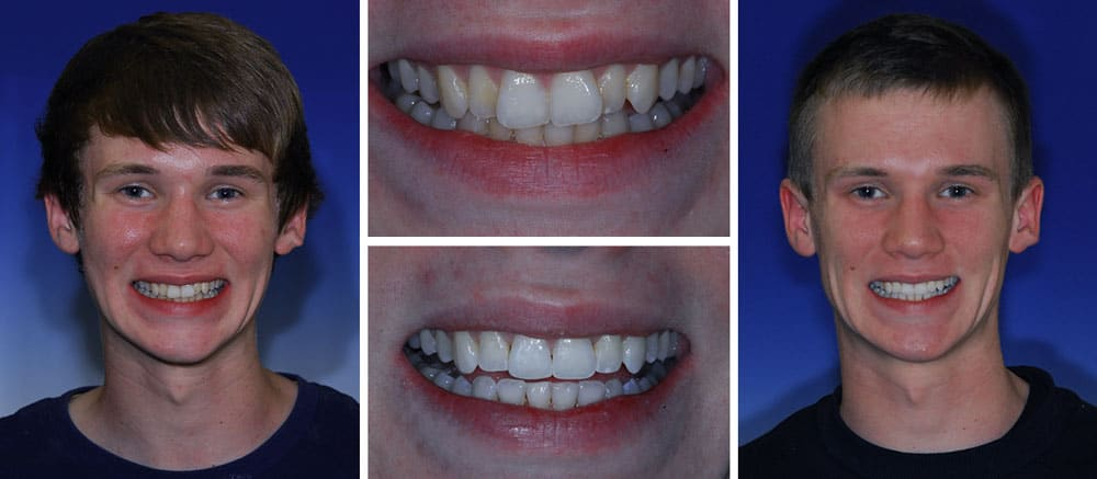 Greg - before and after smile - Beth Snyder, DMD