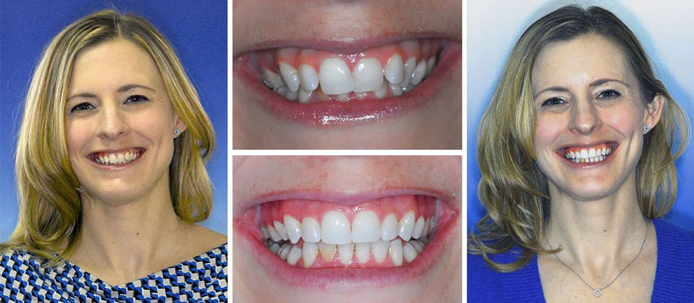 Invisalign treatment at Beth Snyder DMD