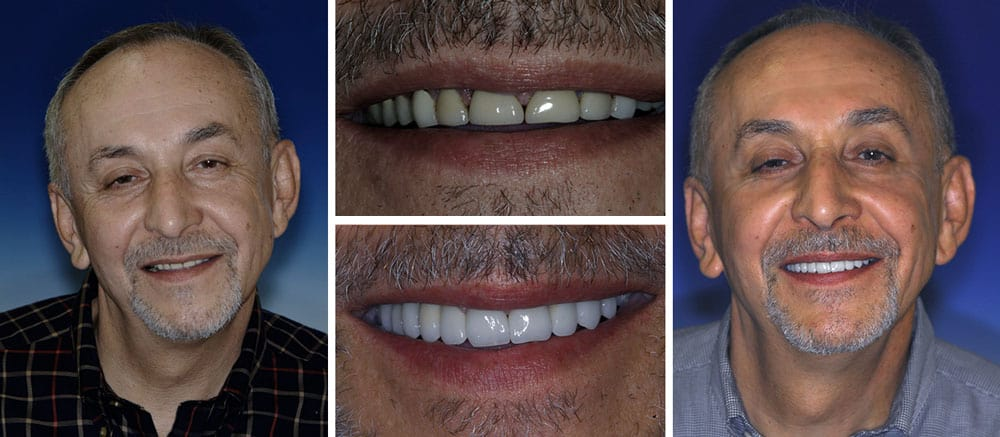 Myron - before and after smile - Beth Snyder, DMD