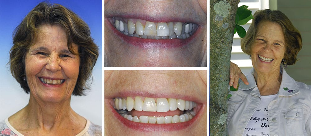 Susan - before and after smile - Beth Snyder, DMD