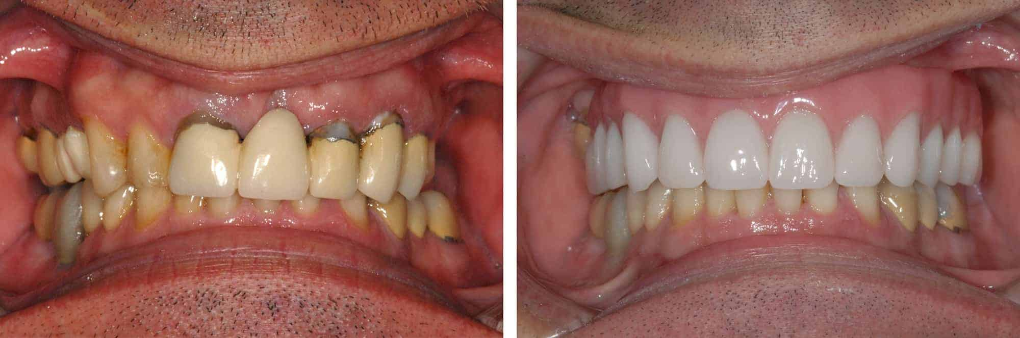multiple teeth implants