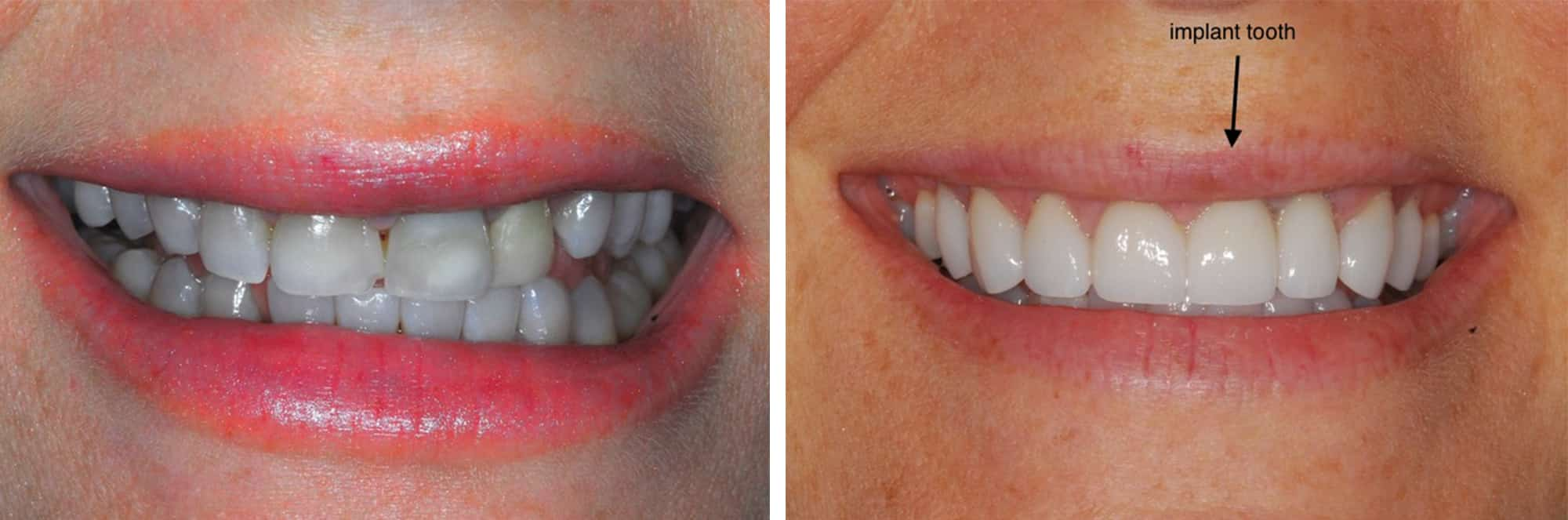 dental implants at Beth Snyder DMD