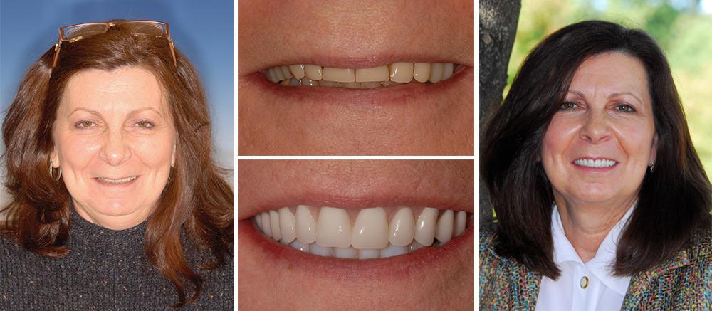 Dentures at Beth Snyder DMD